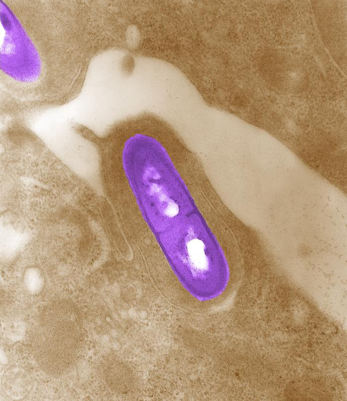 Food Recalls for the Bacteria Listeria | Food Safety Microbiology